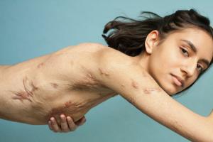 「キズは醜いものじゃない」。なぜ24歳の写真家が「傷跡は人の人生を物語るロードマップだ」と断言するのか。